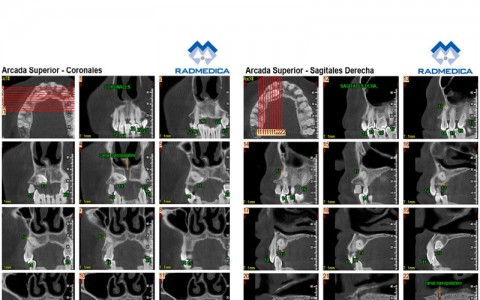 CBCT DENTS INCLOSOS